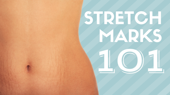 Stretch mark removal in downtown Denver