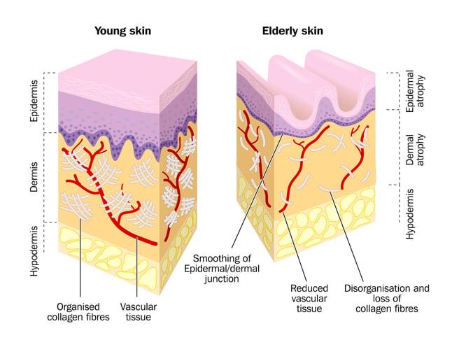 collagen-comparison-by-age.jpg