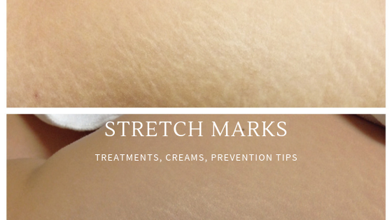 stretch marks treatments